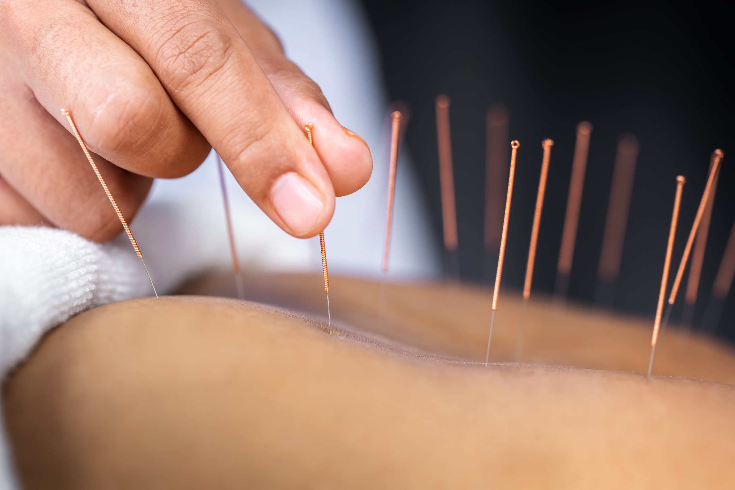 acupuncture gulf breeze florida